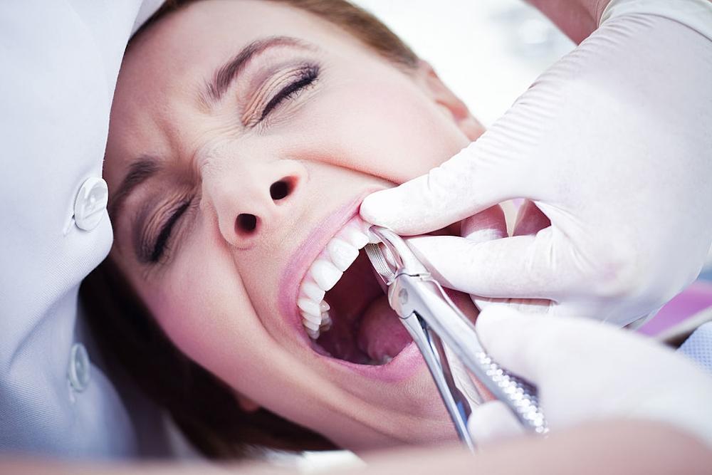 Como extrair um dente