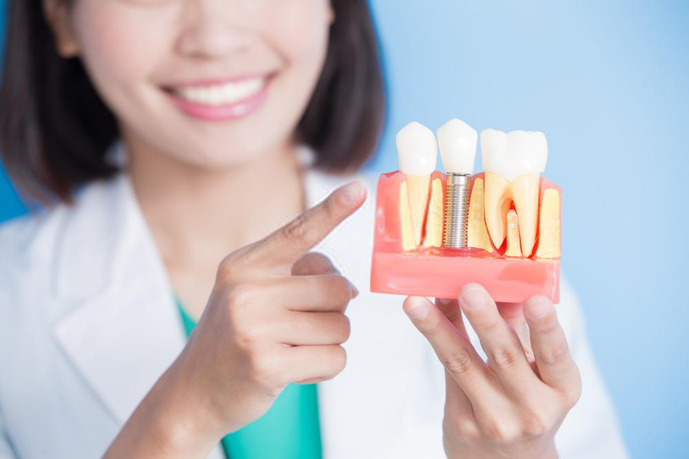 tempo de recuperação do implante dentário