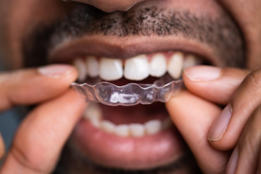 Moldeira para Clareamento Dental