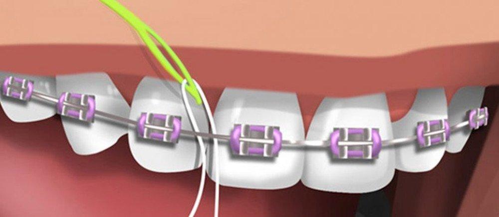 passar fio dental com aparelho