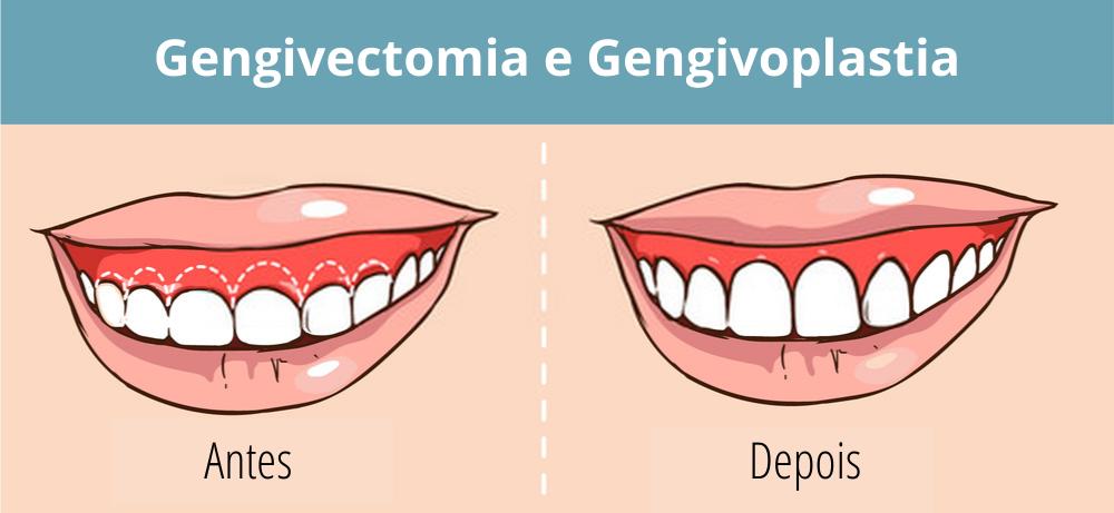 gengivoplastia e gengivectomia antes e depois