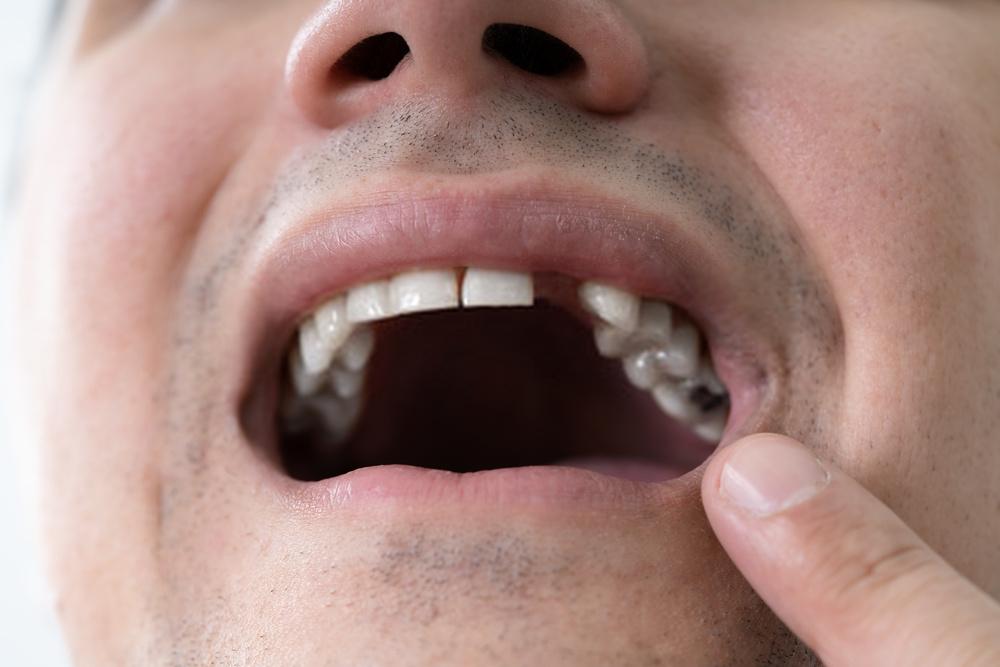 Falta de dente