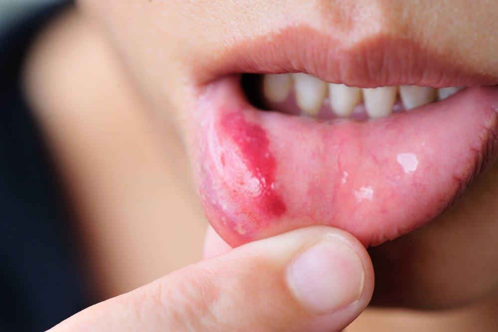 feridas na boca