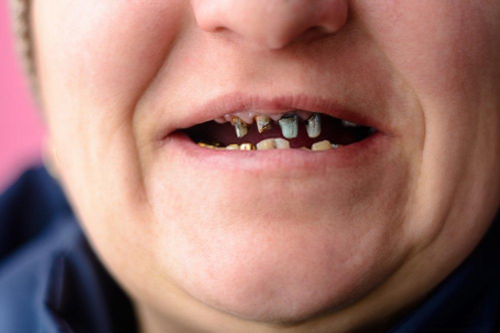 tratamento para dente podre